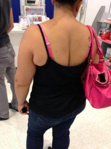 back cleavage